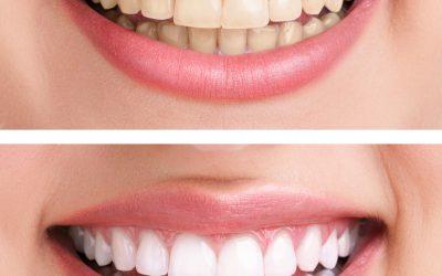 Veneers oder Zahnkrone – passende Zahntechnik aus Berlin