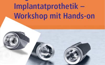02.09.2016: Hands-On Workshop Möglichkeiten in der Implantatprothetik – jetzt anmelden!