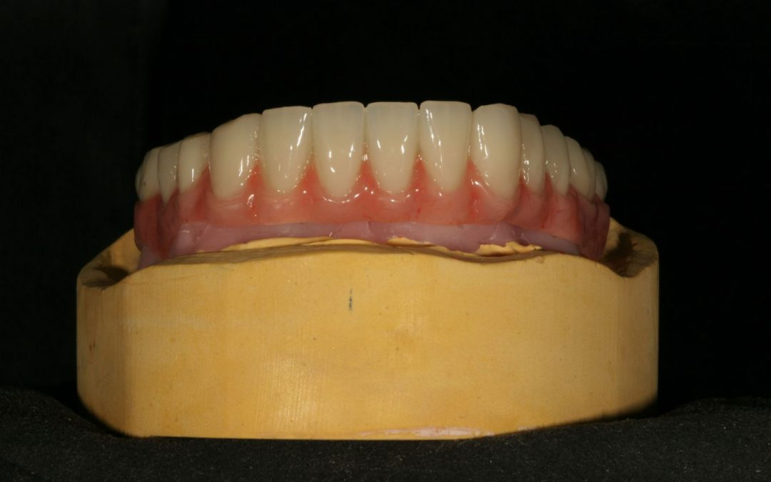 Herausnehmbare Implantatversorgung