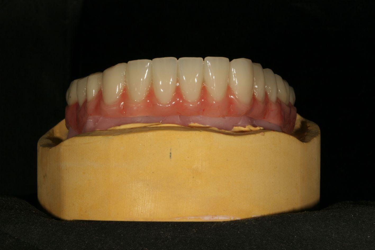 implantat berlin